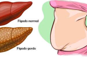 figado_gordo_gordura_no_figado